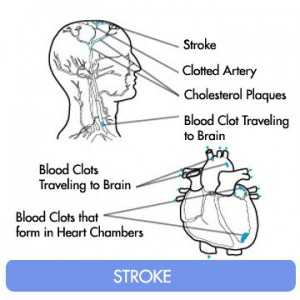 stroke causes