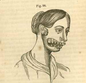 A drawing depicting a woman suffering from necrosis of the jaw (colloquially known as 'phossy jaw'.