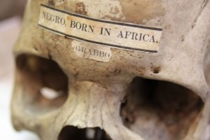 Skull with label across its forehead reading 'Negro - Born in Africa'