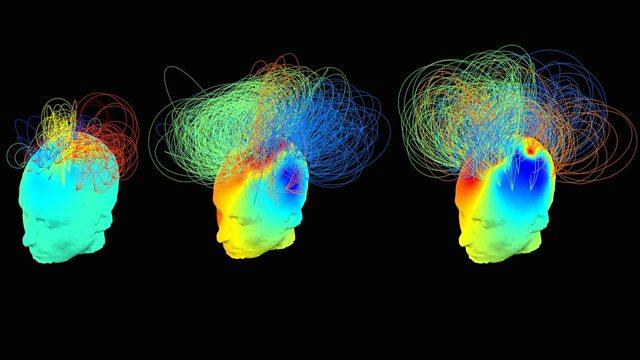 brain activity states